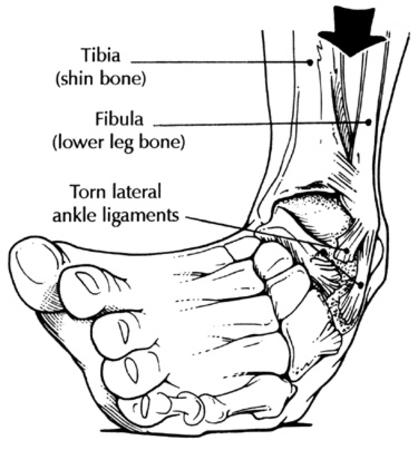 ankle bw chart ouch sprain // 375x404 // 51.3KB