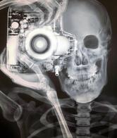 camera skeleton x-ray // 500x592 // 84.6KB